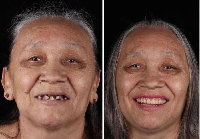 Вернуть веру в добро и улыбку: дантист путешествует по миру и бесплатно лечит зубы беднякам