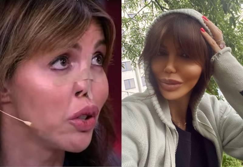 Российская модель Алиса Казьмина рассказала, что случилось с ее лицом, и почему провалился нос