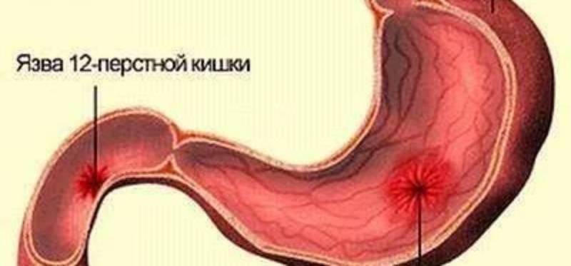 Диагноз «желудочный ковид», что это такое: объяснение эксперта
