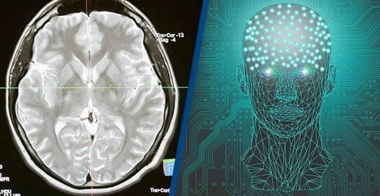 Илон Маск продолжает разработку технологии по управлению компьютером силой мысли